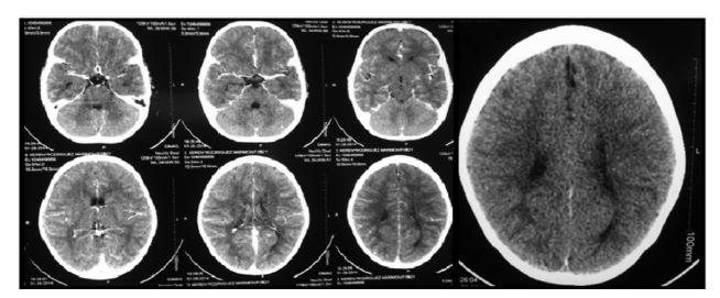cisticercosis cerebral patologia